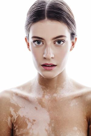白斑病の若いブルネット美女クローズ アップ正白で隔離