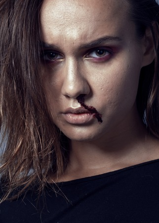 junky: problem depressioned teenager with bleeding nose, real junky close up mainstream angry concept, lifestyle people Stock Photo