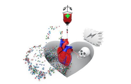 disease, healthcare and medicine, cardiovascular risk, Stock Photo