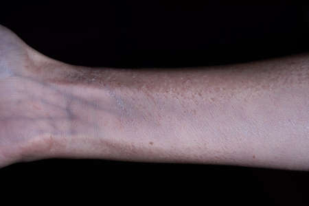 Cropped view of female arm with dead, exfoliated skin isolated on black backgound. Side effects of medicine treatment.