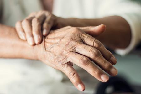 Chiudere le mani del paziente anziano donna anziana che soffre di sintomo di malattia di pakinson. Salute mentale e concetto di assistenza agli anziani