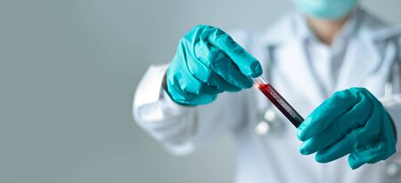 Doctor holding test glass tube with blood for covid-19 analyzing.
