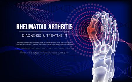 Rheumatoid arthritis Bones the of foot 免版税图像 - 118916479