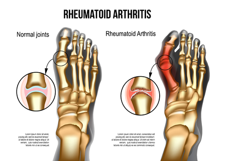 Realistic skeleton of human leg with bones of foot normal and rheumatoid artritic sore joints, top view. For rheumatoid arthritis advertising, medical publications. Vector illustration stock vector.