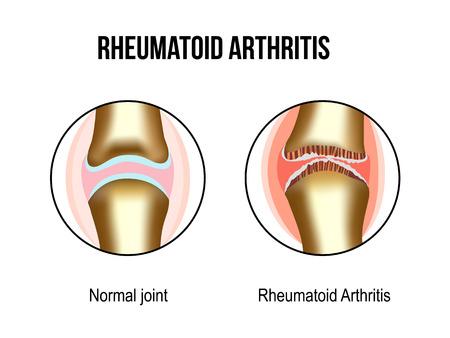 Normal and rheumatoid arthritis joints Illustration