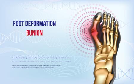 Foot deformation Bunion Illustration