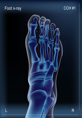 Blue vector realistic x ray of skeleton of foot or human leg bones. Anatomy of joints, dorsal top view. For advertising or medical publications. Illustration stock vector.