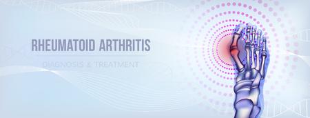 Horizontal light blue banner with rheumatoid artritic sore joints concept. Realistic bones of foot skeleton of human leg. For rheumatoid arthritis advertising, medical publications in social media. Vector illustration stock vector. Ilustração