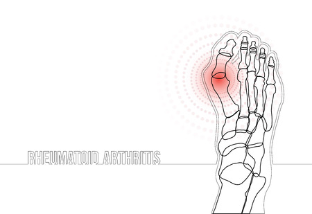 White horizontal rheumatoid arthritis continuous line drawing concept banner. Linear bones joints of foot. For advertising, medical publications in social media. Vector illustration. Illustration