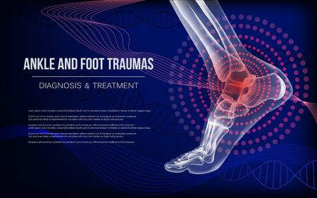 Ankle sore joints concept. Realistic bones of foot skeleton of human leg. Horizontal dark blue banner for ankle and foot joints traumas advertising, medical publications. Vector illustration stock. Imagens - 125723638