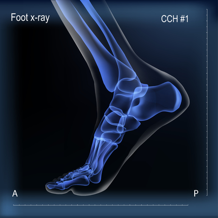 Medial view x ray of bones the of foot. Illustration