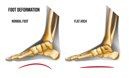 Anatomy flat foot arch. Bones the of foot medial view. Realistic skeleton of human leg. For advertising or medical publications. Vector illustration stock vector. Ilustração