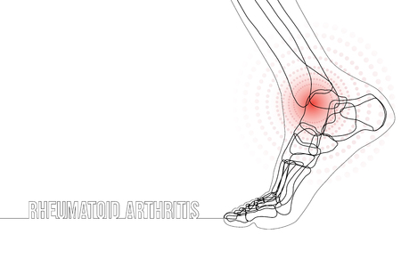 White horizontal continuous line drawing concept banner about rheumatoid arthritis. Linear bones joints of foot. For advertising, medical publications in social media. Vector illustration.