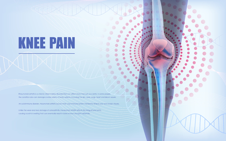 Knee pain relief, bones the of knee