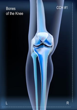 Radiografía de los huesos de la rodilla.
