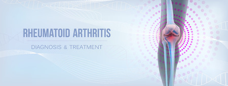 Vertical light rheumatoid arthritis Bones the of knee