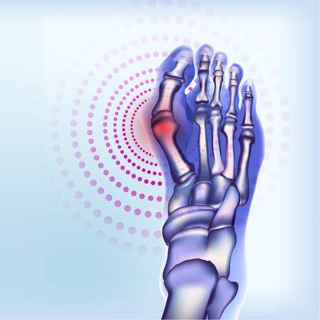 Rheumatoid artritic sore joints concept. Realistic bones of foot skeleton of human leg. Light blue banner for rheumatoid arthritis advertising, medical publications. Vector illustration stock.