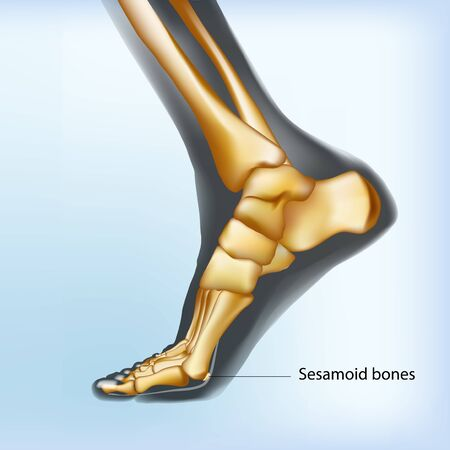 Naturalistic visualization of foot with sesamoid bones. Anatomy of joints, human leg realistic black and yellow transparente skeleton. view. For medical orthopedic advertising. Vector illustration stock vector.