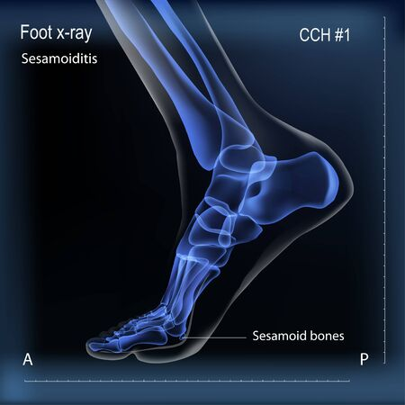 Medial view x ray of bones the of foot with sesamoid.