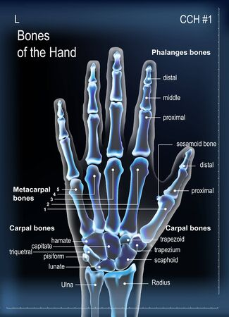 Frontal view x ray of bones the of hand with anotations.