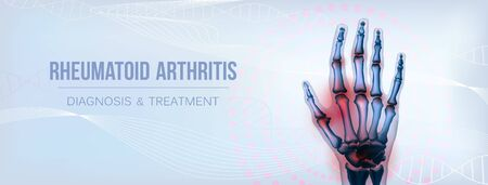 Horizontal rheumatoid arthritis hand sore joints concept for social media Imagens - 137422371