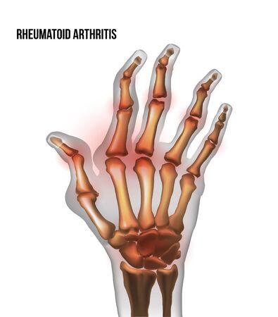 Rheumatoid arthritis image sore inflammation joints of bones the of hand.
