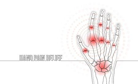 Rheumatoid arthritis continuous line hand bones drawing concept banner Illustration