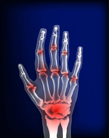 Osteoarthritis image sore inflammation joints of bones the of hand.