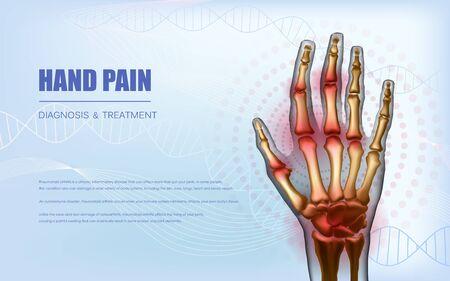Osteoarthritis rheumatoid arthritis hand sore joints concept Ilustração