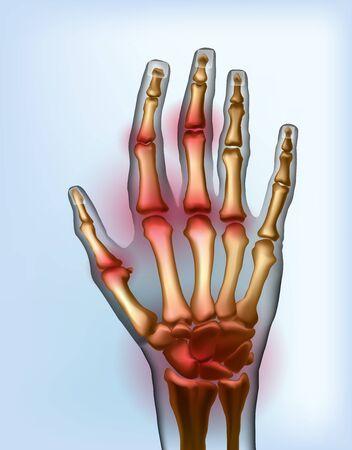 Frontal view image sore osteoarthritis joints of bones the of hand. Ilustração