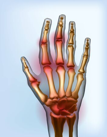 Frontal view image sore osteoarthritis joints of bones the of hand. Illustration