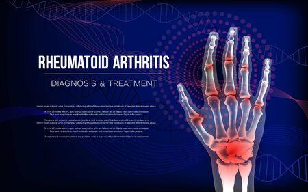 Rheumatoid arthritis osteoarthritis banner inflammation joints of bones of hand.