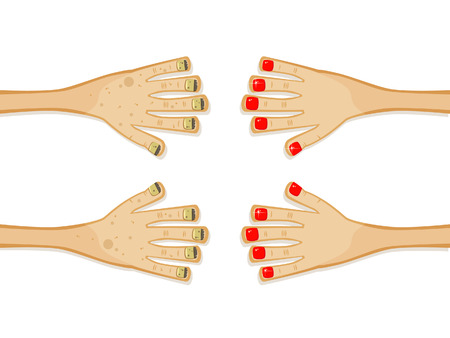 Hands before and after the manicure. Comic Vector art. Isolated objects. Stock Vector - 8730688