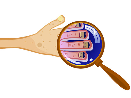 Groomed hand under a magnifying glass. Dirty fingernails. Nail fungus. Isolated comical picture. Stock Vector - 8730692