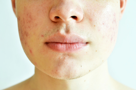 Close up of man with problematic skin and scars from acne Stock Photo