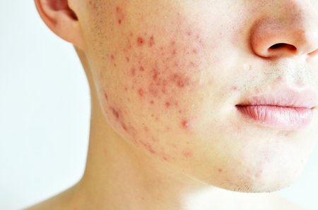 Close up of man with problematic skin and scars from acne Foto de archivo