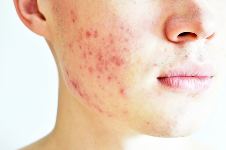 Close up of man with problematic skin and scars from acne Imagens