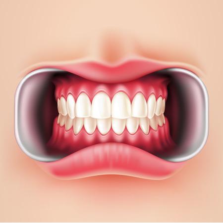 Vector realistic straight teeth after braces dental installation, brakets system. Teeth care, dentist medical concept. Oral hygiene, orthodontics treatment. Healthcare, correct bite Vettoriali