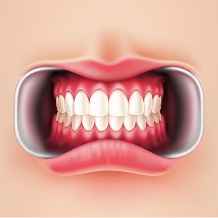 Vector realistic straight teeth after braces dental installation, brakets system. Teeth care, dentist medical concept. Oral hygiene, orthodontics treatment. Healthcare, correct bite  イラスト・ベクター素材