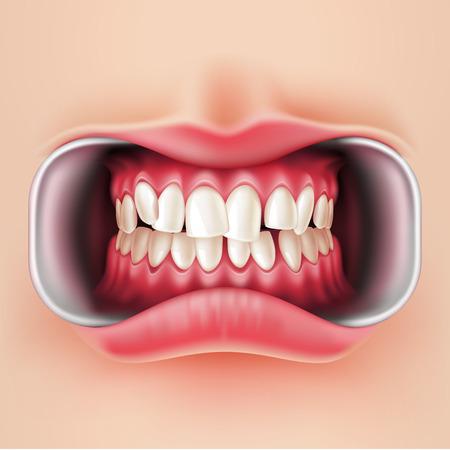 Vector realistic crooked teeth before braces dental installation, brakets system. Teeth care, dentist medical concept. Oral hygiene, orthodontics treatment. Healthcare, correct bite Standard-Bild - 109639810