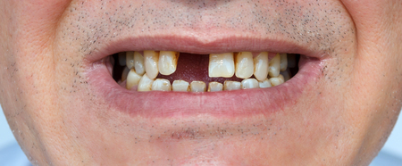 bristles: Mens smile without tooth and with bristles Stock Photo