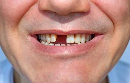Heren glimlach zonder tand. fragment van het gezicht Stockfoto