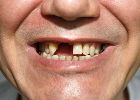Mannen lachen zonder twee voortanden Stockfoto