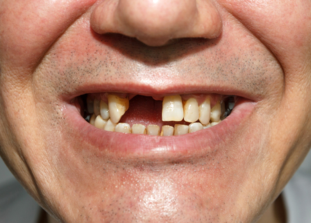 Men smile without two front teeth