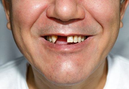 ugly mouth: Man smile without two front teeth Stock Photo