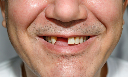 front teeth: Man smile without two front teeth with bristles