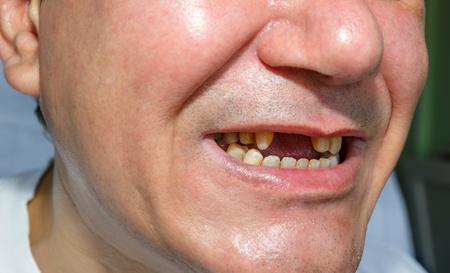 ein Mann ohne zwei Zähne und geschält die oberen Zähne für Brückeninstallation