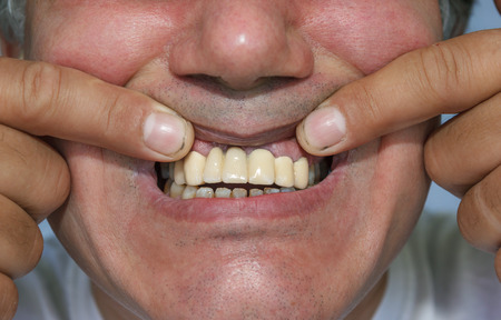 ugliness: man, showing a mouth with false front upper teeth (dental bridge)