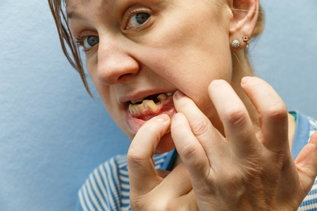 Women, showing mouth without tooth (broken) using fingers Standard-Bild - 99466300