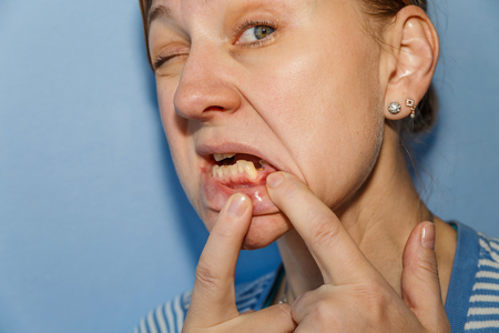 Women, showing mouth without tooth (broken) using fingers Standard-Bild - 99466304